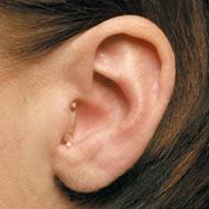 Im-Ohr Versorgung